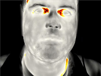 Thermal image of elevated body temperature being measured at the interior canthus